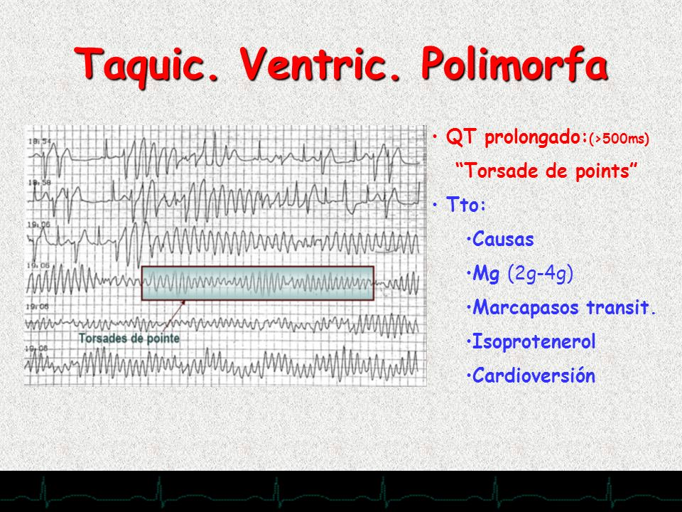 28/11/2007 Taquic. Ventric. Polimorfa QT prolongado: (>500ms) Torsade de points Tto: Causas Mg (2g-4g) Marcapasos transit. Isoprotenerol Cardioversión
