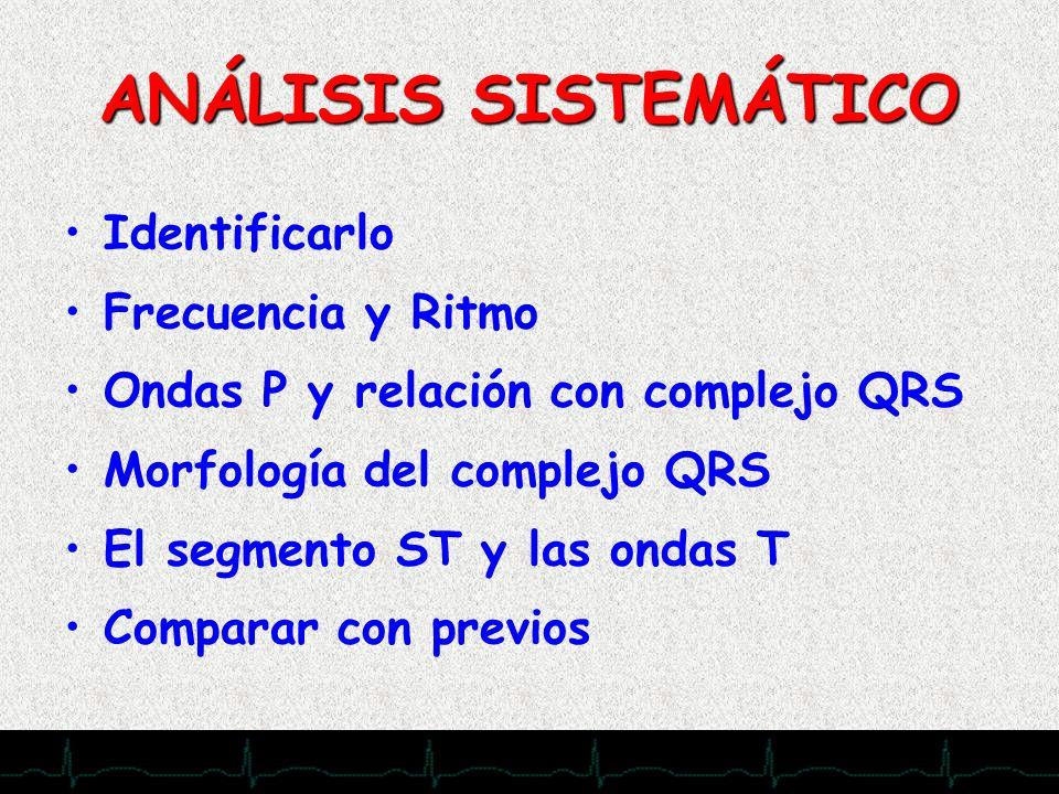 ANÁLISIS SISTEMÁTICO Identificarlo Frecuencia y Ritmo Ondas P y relación con complejo QRS Morfología del complejo QRS El segmento ST y las ondas T Com