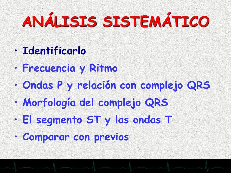 28/11/2007 ANÁLISIS SISTEMÁTICO Identificarlo Frecuencia y Ritmo Ondas P y relación con complejo QRS Morfología del complejo QRS El segmento ST y las