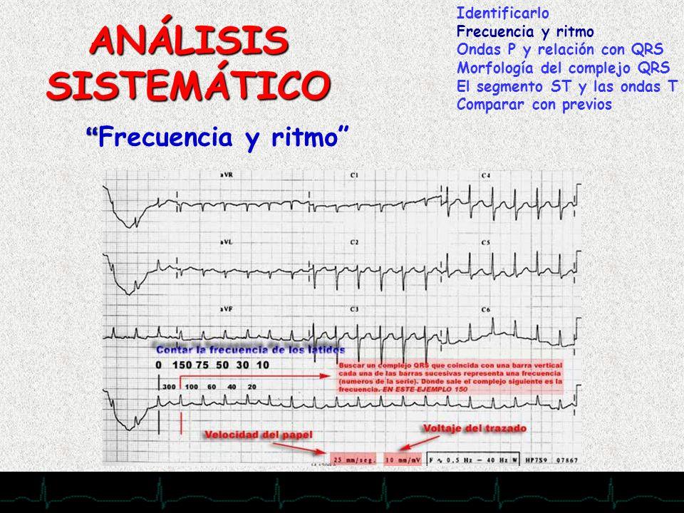 28/11/2007 ANÁLISIS SISTEMÁTICO Identificarlo Frecuencia y ritmo Ondas P y relación con QRS Morfología del complejo QRS El segmento ST y las ondas T C