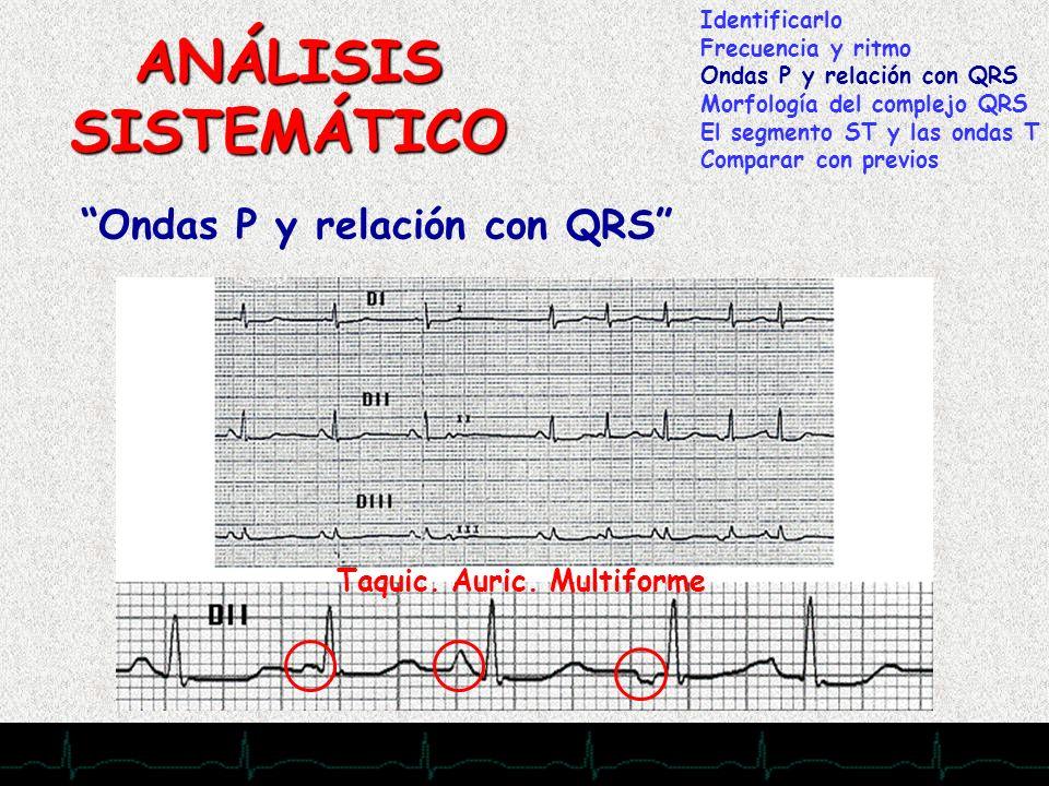 28/11/2007 ANÁLISIS SISTEMÁTICO Ondas P y relación con QRS Identificarlo Frecuencia y ritmo Ondas P y relación con QRS Morfología del complejo QRS El