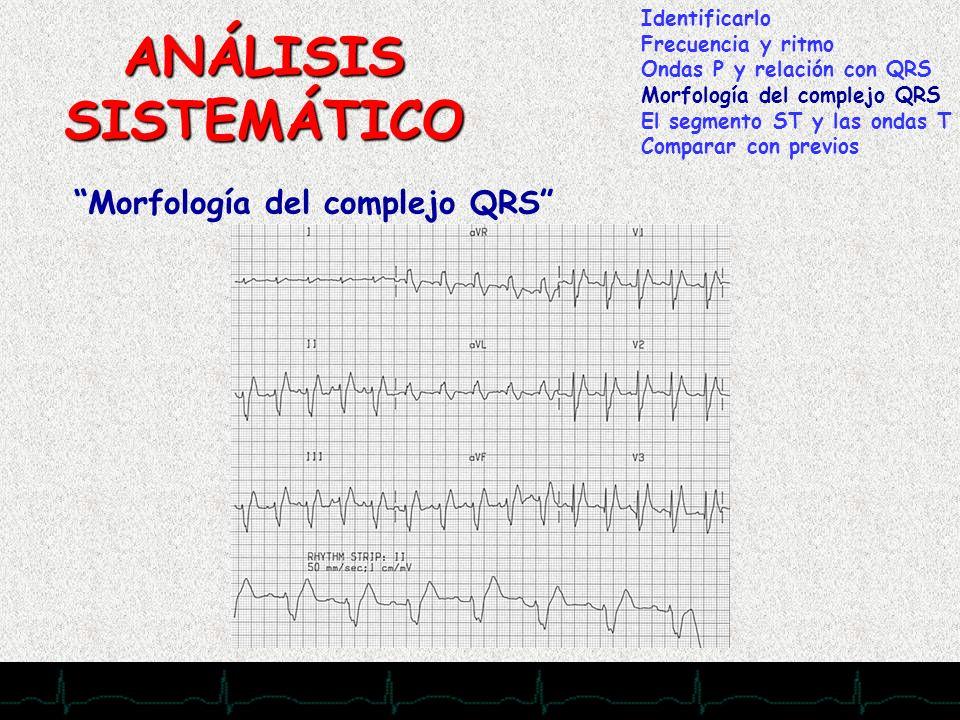 28/11/2007 ANÁLISIS SISTEMÁTICO Morfología del complejo QRS Identificarlo Frecuencia y ritmo Ondas P y relación con QRS Morfología del complejo QRS El