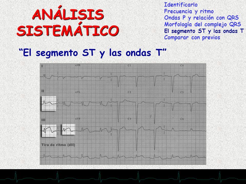28/11/2007 ANÁLISIS SISTEMÁTICO El segmento ST y las ondas T Identificarlo Frecuencia y ritmo Ondas P y relación con QRS Morfología del complejo QRS E