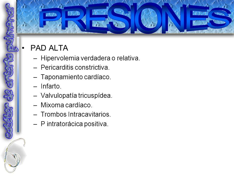 PAD ALTA –Hipervolemia verdadera o relativa. –Pericarditis constrictiva. –Taponamiento cardíaco. –Infarto. –Valvulopatía tricuspídea. –Mixoma cardíaco