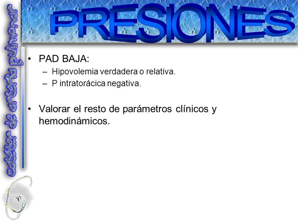 PAD BAJA: –Hipovolemia verdadera o relativa. –P intratorácica negativa. Valorar el resto de parámetros clínicos y hemodinámicos.