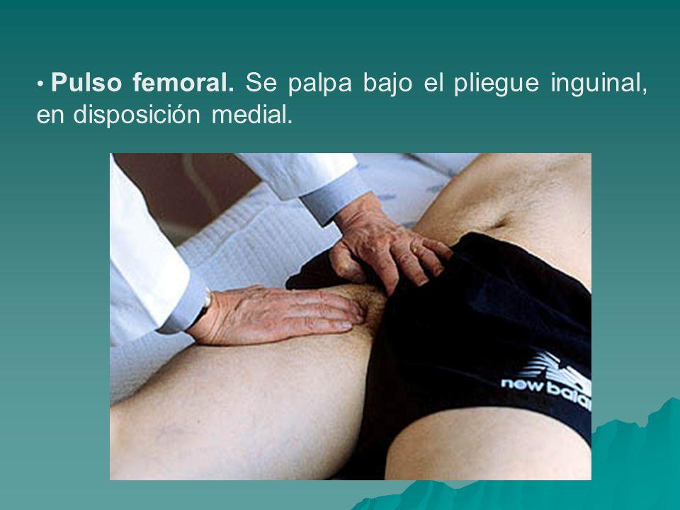 Pulso femoral. Se palpa bajo el pliegue inguinal, en disposición medial.