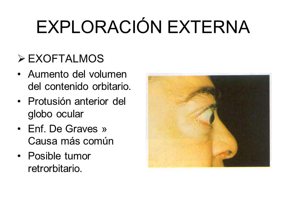 EXPLORACIÓN EXTERNA IRIS Y PUPILA Disposición del iris debe de ser claramente visible Irregularidad de las forma de las pupilas Respuesta a la luz de