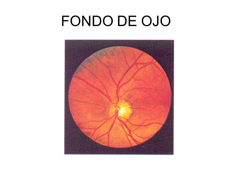EXPLORACIÓN EXTERNA MOVIMIENTOS OCULARES EXTERNOS. Por Los Nervios Craneales. III Motor Ocular Comun IV Troclear o Patetico VI Motor Ocular Externo.