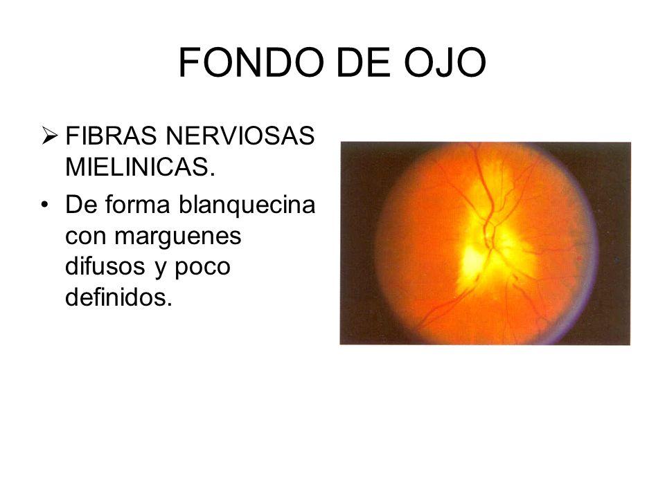 FONDO DE OJO MACULA Conocida como Fovia o Macula Lútea A 2 diametros papilares en dirección temporal Carece de vasos sanguineos, en forma de mancha, b