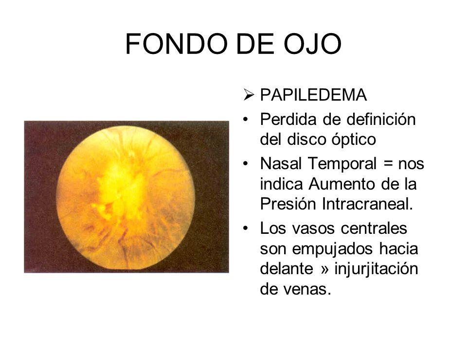 FONDO DE OJO FIBRAS NERVIOSAS MIELINICAS. De forma blanquecina con marguenes difusos y poco definidos.