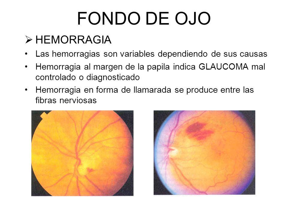 FONDO DE OJO PAPILEDEMA Perdida de definición del disco óptico Nasal Temporal = nos indica Aumento de la Presión Intracraneal. Los vasos centrales son