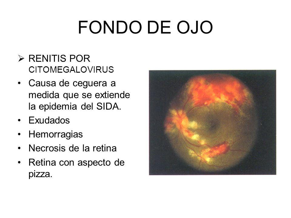 FONDO DE OJO RETINOPATÍA DIABÉTICA (proliferativa) Se ve el desarrollo de neuvos vasos como resultado del estímulo anóxico Constituye una causa import