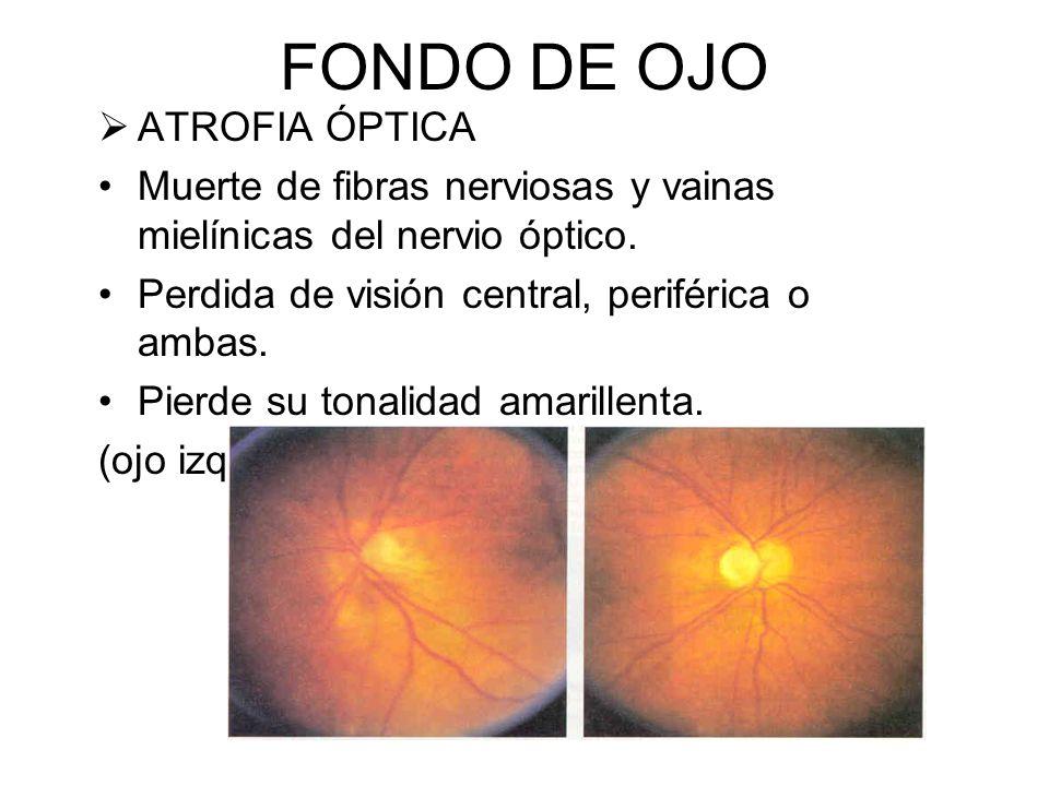 FONDO DE OJO RETINOBLASTOMA Tumor congenito maligno Reflejo pupilar blanco (ojo de gato) Masa poco definida Zonas de calcificación blanco-calcáreas.