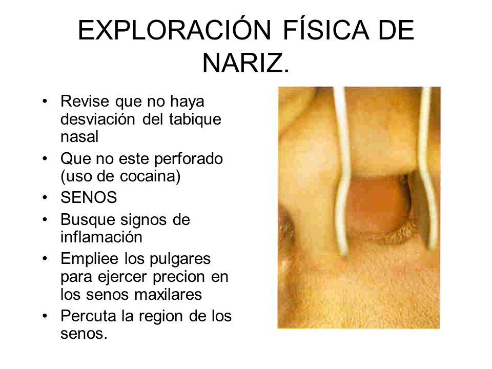 EXPLORACIÓN FÍSICA DE NARIZ. Palpe el puente y los tejidos blandos de la nariz. Desplazamiento de hueso y cartilago Masas y zonas de sensibilidad dolo