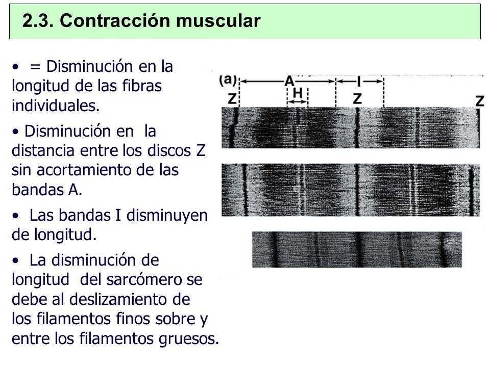 = Disminución en la. longitud de las fibras individuales. Disminución en la distancia entre los discos Z sin acortamiento de las bandas A. Las bandas