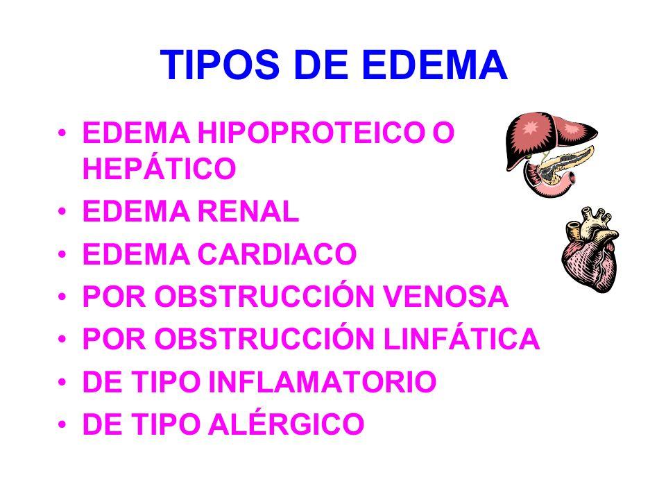 TIPOS DE EDEMA EDEMA HIPOPROTEICO O HEPÁTICO EDEMA RENAL EDEMA CARDIACO POR OBSTRUCCIÓN VENOSA POR OBSTRUCCIÓN LINFÁTICA DE TIPO INFLAMATORIO DE TIPO