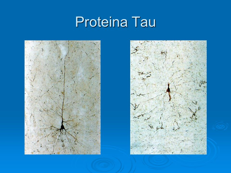 Proteina Tau