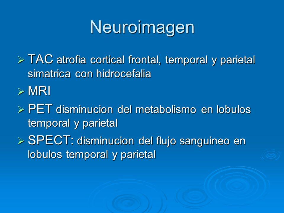 Neuroimagen TAC atrofia cortical frontal, temporal y parietal simatrica con hidrocefalia TAC atrofia cortical frontal, temporal y parietal simatrica c