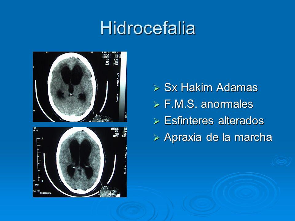 Hidrocefalia Sx Hakim Adamas Sx Hakim Adamas F.M.S. anormales F.M.S. anormales Esfinteres alterados Esfinteres alterados Apraxia de la marcha Apraxia