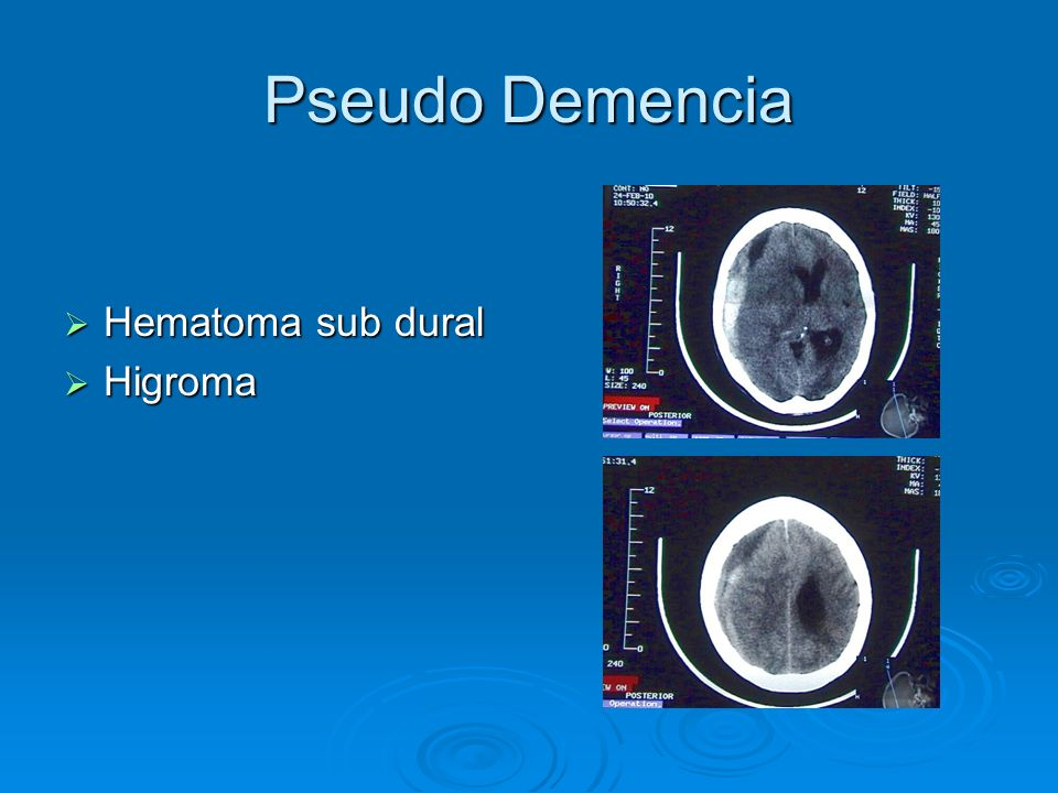 Pseudo Demencia Hematoma sub dural Hematoma sub dural Higroma Higroma