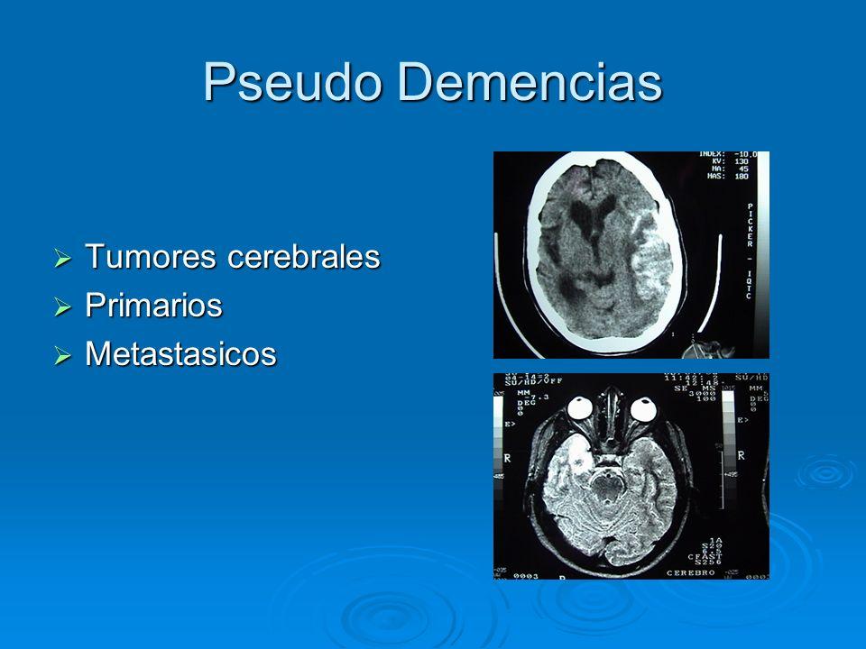 Pseudo Demencias Tumores cerebrales Tumores cerebrales Primarios Primarios Metastasicos Metastasicos