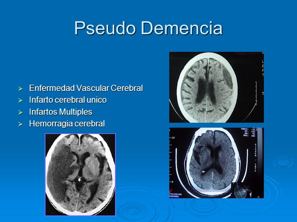 Pseudo Demencia Enfermedad Vascular Cerebral Enfermedad Vascular Cerebral Infarto cerebral unico Infarto cerebral unico Infartos Multiples Infartos Mu