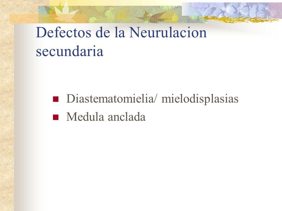 Defectos de la Neurulacion secundaria Diastematomielia/ mielodisplasias Medula anclada