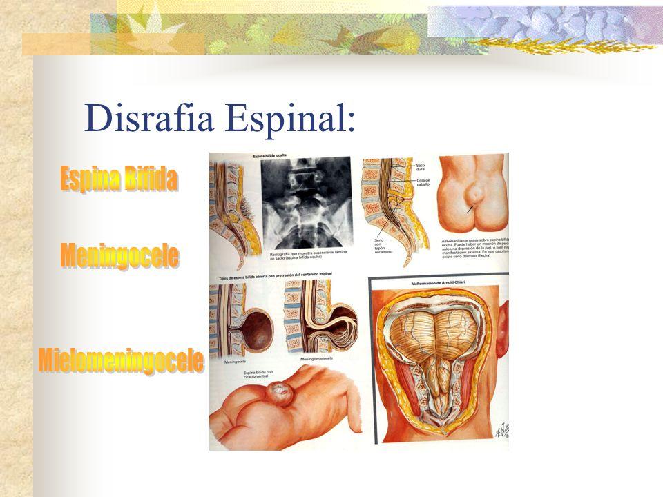 Disrafia Espinal: