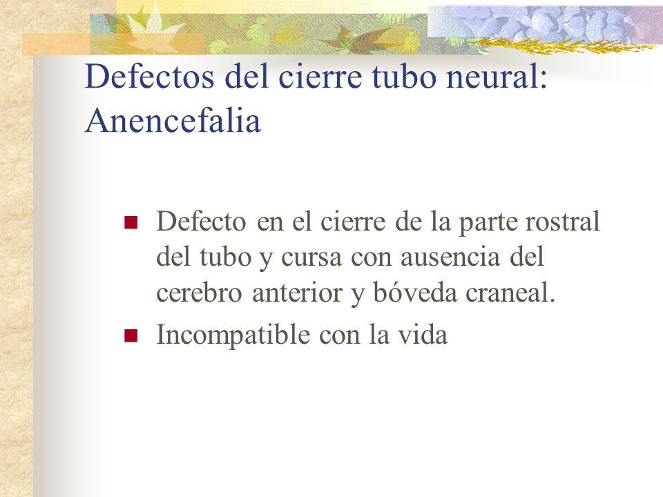 Defectos del cierre tubo neural: Anencefalia Defecto en el cierre de la parte rostral del tubo y cursa con ausencia del cerebro anterior y bóveda cran