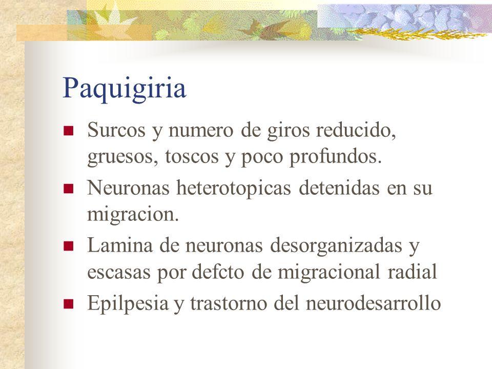 Paquigiria Surcos y numero de giros reducido, gruesos, toscos y poco profundos. Neuronas heterotopicas detenidas en su migracion. Lamina de neuronas d