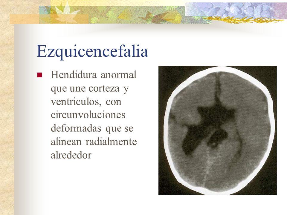Ezquicencefalia Hendidura anormal que une corteza y ventriculos, con circunvoluciones deformadas que se alinean radialmente alrededor