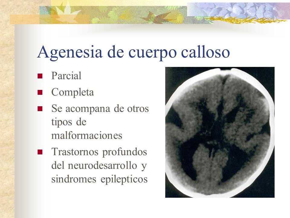 Agenesia de cuerpo calloso Parcial Completa Se acompana de otros tipos de malformaciones Trastornos profundos del neurodesarrollo y sindromes epilepti