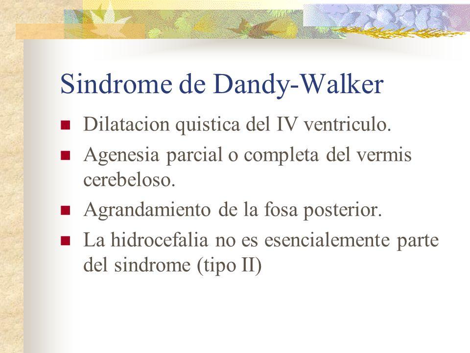 Sindrome de Dandy-Walker Dilatacion quistica del IV ventriculo. Agenesia parcial o completa del vermis cerebeloso. Agrandamiento de la fosa posterior.