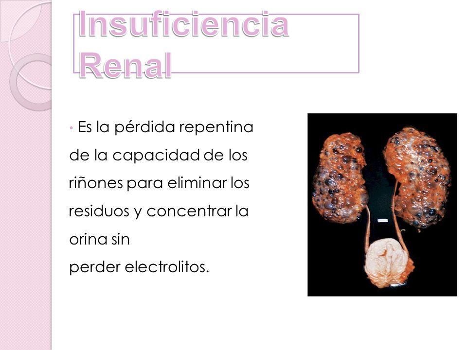 Es la pérdida repentina de la capacidad de los riñones para eliminar los residuos y concentrar la orina sin perder electrolitos.