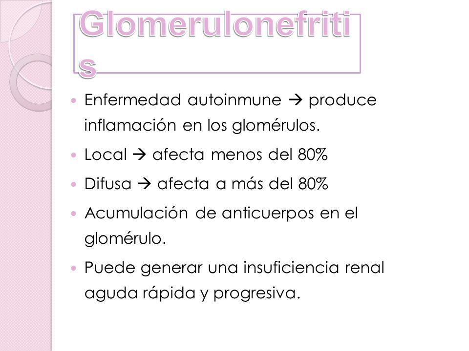 Enfermedad autoinmune produce inflamación en los glomérulos. Local afecta menos del 80% Difusa afecta a más del 80% Acumulación de anticuerpos en el g