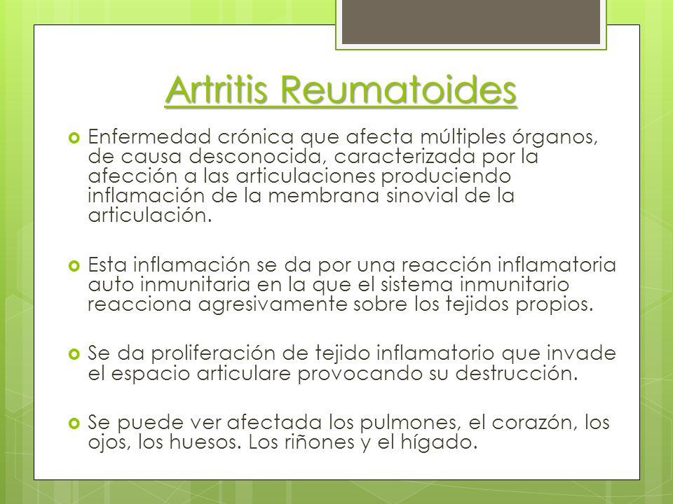 Artritis Reumatoides Enfermedad crónica que afecta múltiples órganos, de causa desconocida, caracterizada por la afección a las articulaciones produci