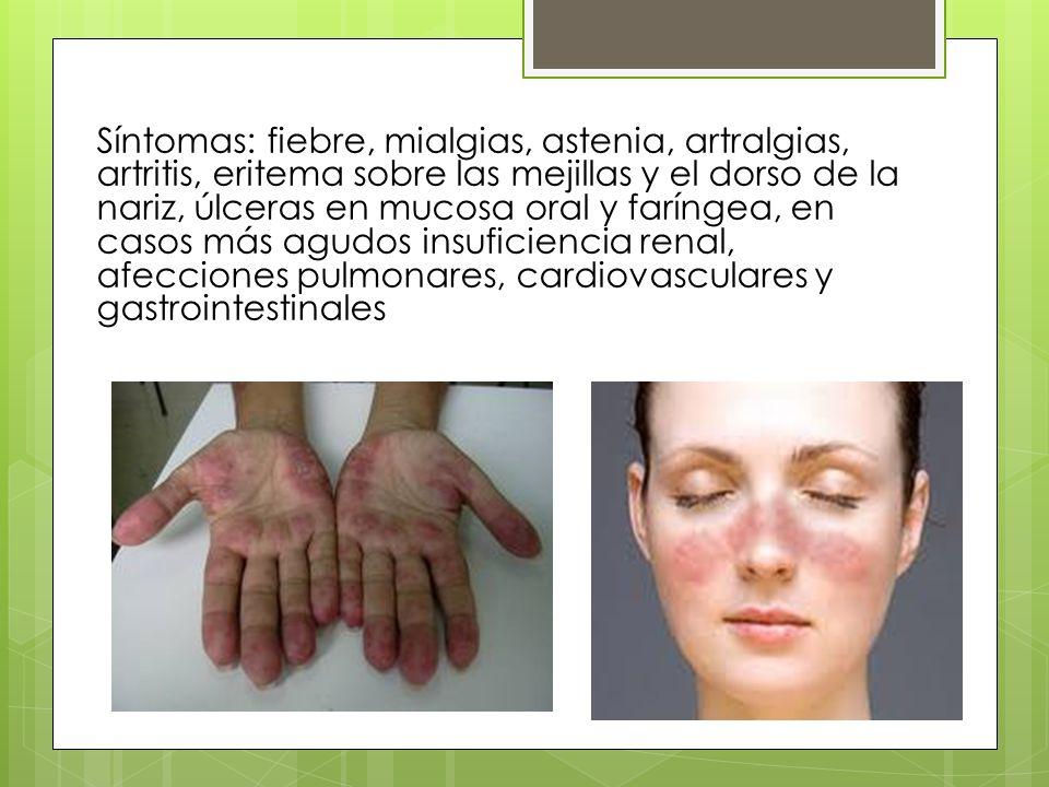 Síntomas: fiebre, mialgias, astenia, artralgias, artritis, eritema sobre las mejillas y el dorso de la nariz, úlceras en mucosa oral y faríngea, en ca