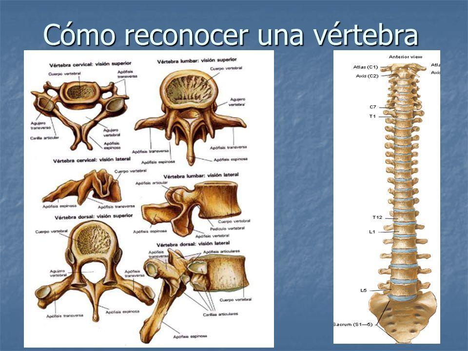 Cómo reconocer una vértebra