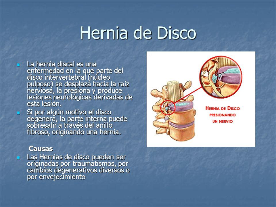Hernia de Disco La hernia discal es una enfermedad en la que parte del disco intervertebral (núcleo pulposo) se desplaza hacia la raíz nerviosa, la pr