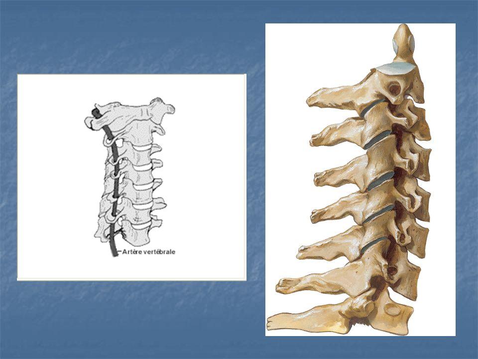 Ligamentos Periféricos Ligamento longitudinal anterior: extendido desde la porción basilar de hueso occipital hasta el sacro.