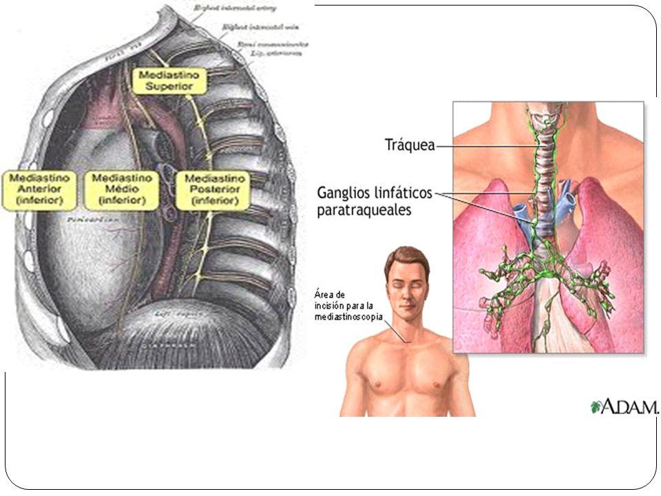 El pericardio Pericardio Membrana fibrosa que cubre el corazón y los grandes vasos.