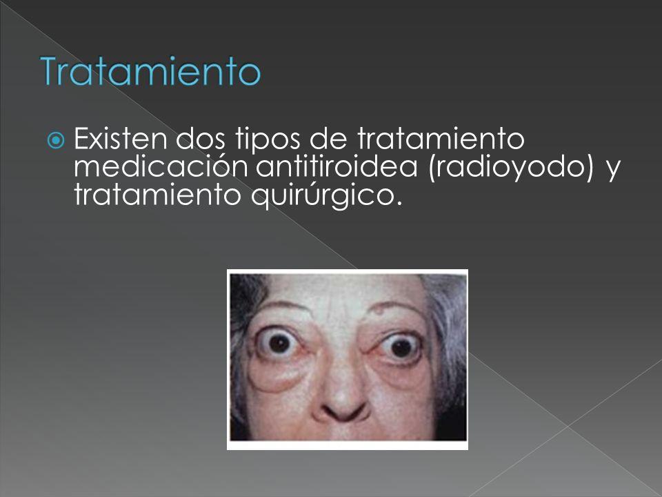 Existen dos tipos de tratamiento medicación antitiroidea (radioyodo) y tratamiento quirúrgico.