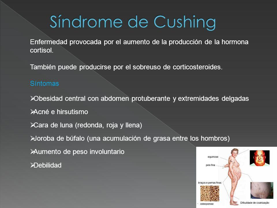 Enfermedad provocada por el aumento de la producción de la hormona cortisol. También puede producirse por el sobreuso de corticosteroides. Síntomas Ob