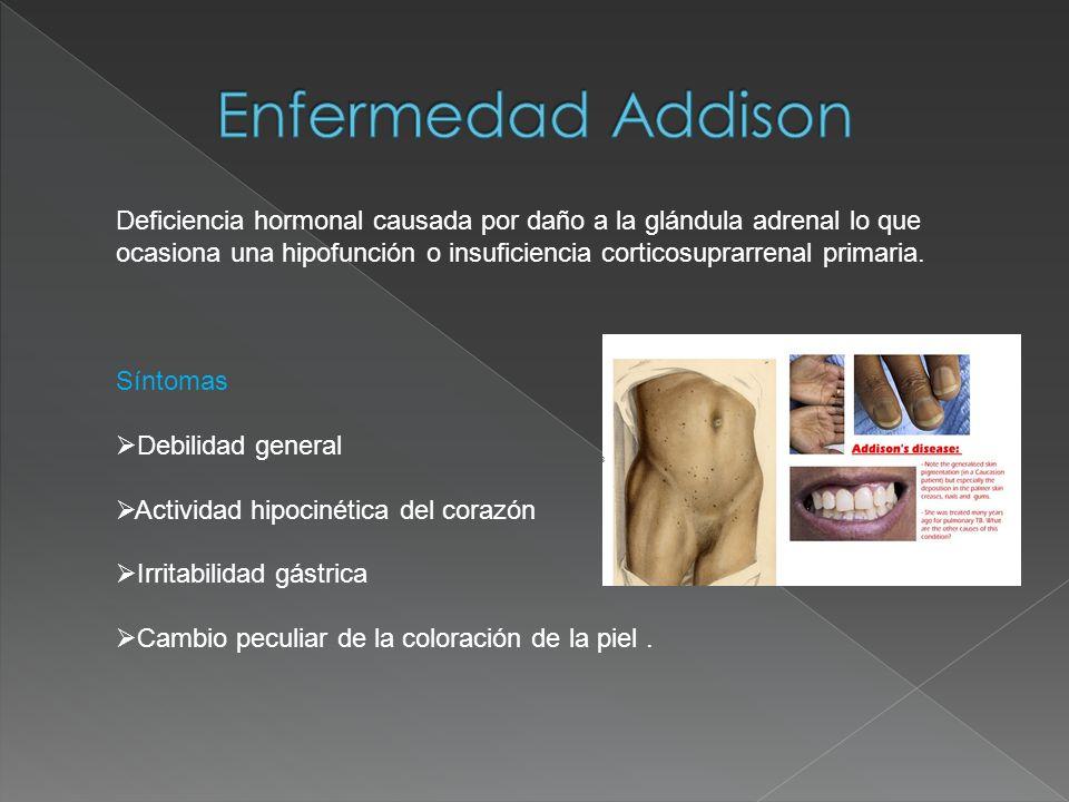 Deficiencia hormonal causada por daño a la glándula adrenal lo que ocasiona una hipofunción o insuficiencia corticosuprarrenal primaria. Síntomas Debi