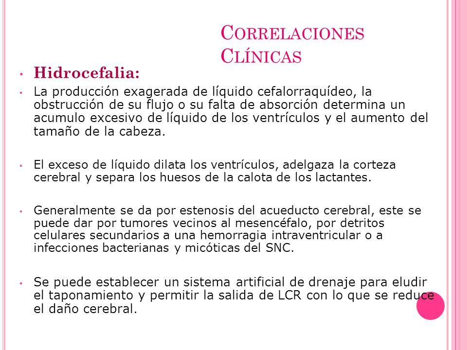 C ORRELACIONES C LÍNICAS Hidrocefalia: La producción exagerada de líquido cefalorraquídeo, la obstrucción de su flujo o su falta de absorción determin
