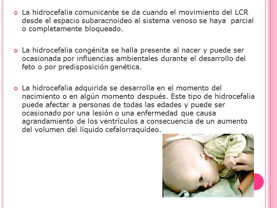 La hidrocefalia comunicante se da cuando el movimiento del LCR desde el espacio subaracnoideo al sistema venoso se haya parcial o completamente bloque