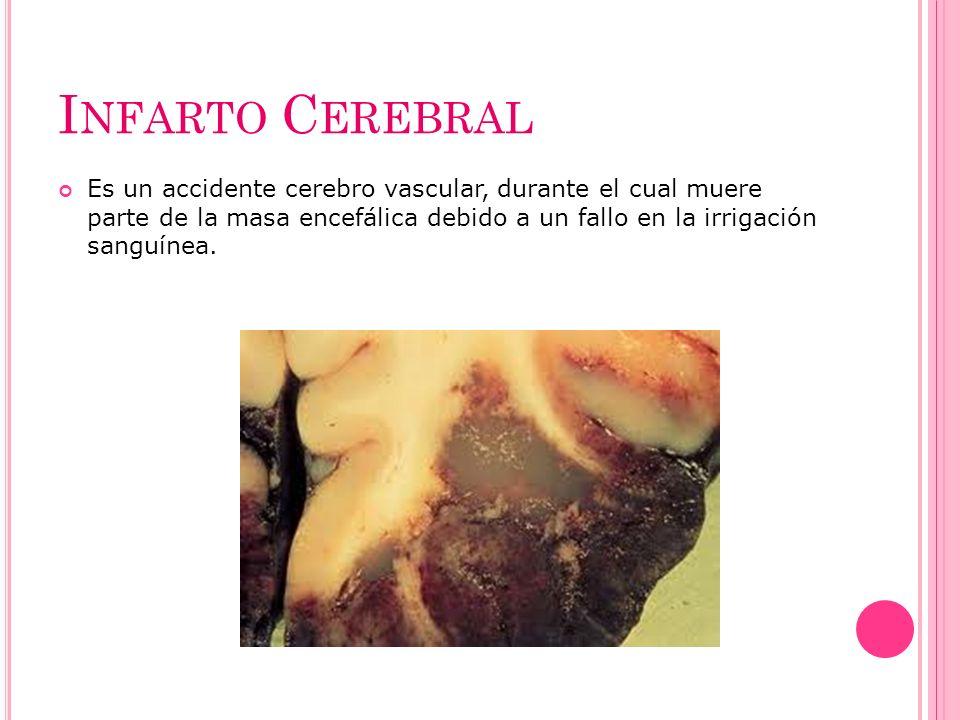 I NFARTO C EREBRAL Es un accidente cerebro vascular, durante el cual muere parte de la masa encefálica debido a un fallo en la irrigación sanguínea.