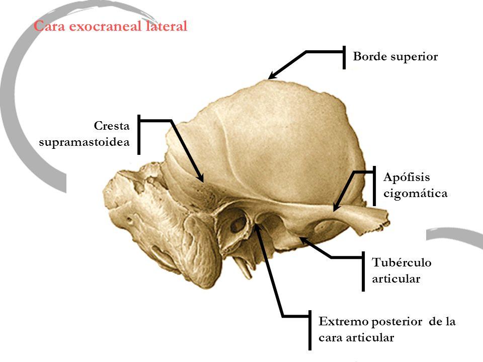 Cara exocraneal lateral Tubérculo articular Apófisis cigomática Extremo posterior de la cara articular Borde superior Cresta supramastoidea