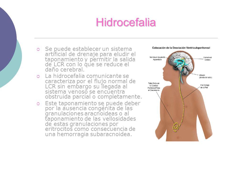 Hidrocefalia Se puede establecer un sistema artificial de drenaje para eludir el taponamiento y permitir la salida de LCR con lo que se reduce el daño