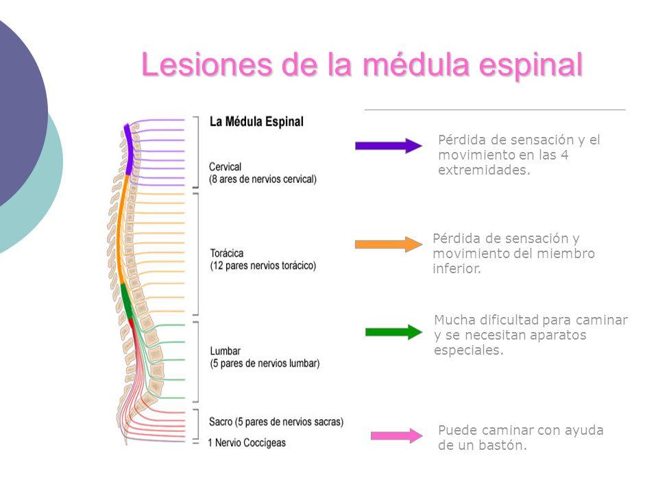Lesiones de la médula espinal Pérdida de sensación y el movimiento en las 4 extremidades. Pérdida de sensación y movimiento del miembro inferior. Much